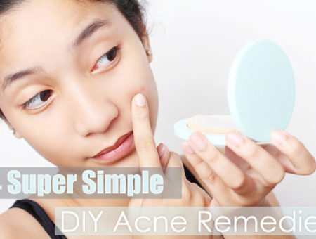 4 Super Simple DIY Acne Remedies