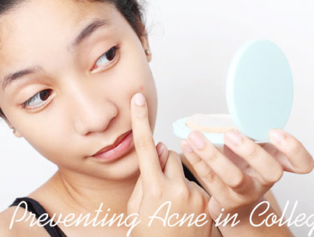 Preventing acne in college
