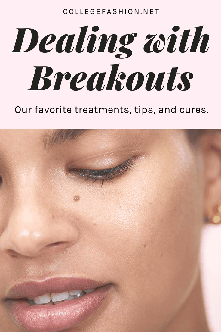 Skin breakouts 101: A guide to dealing with acne skin breakouts the right way