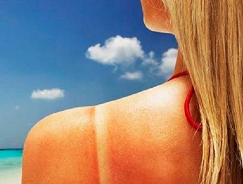 Sunburn girl