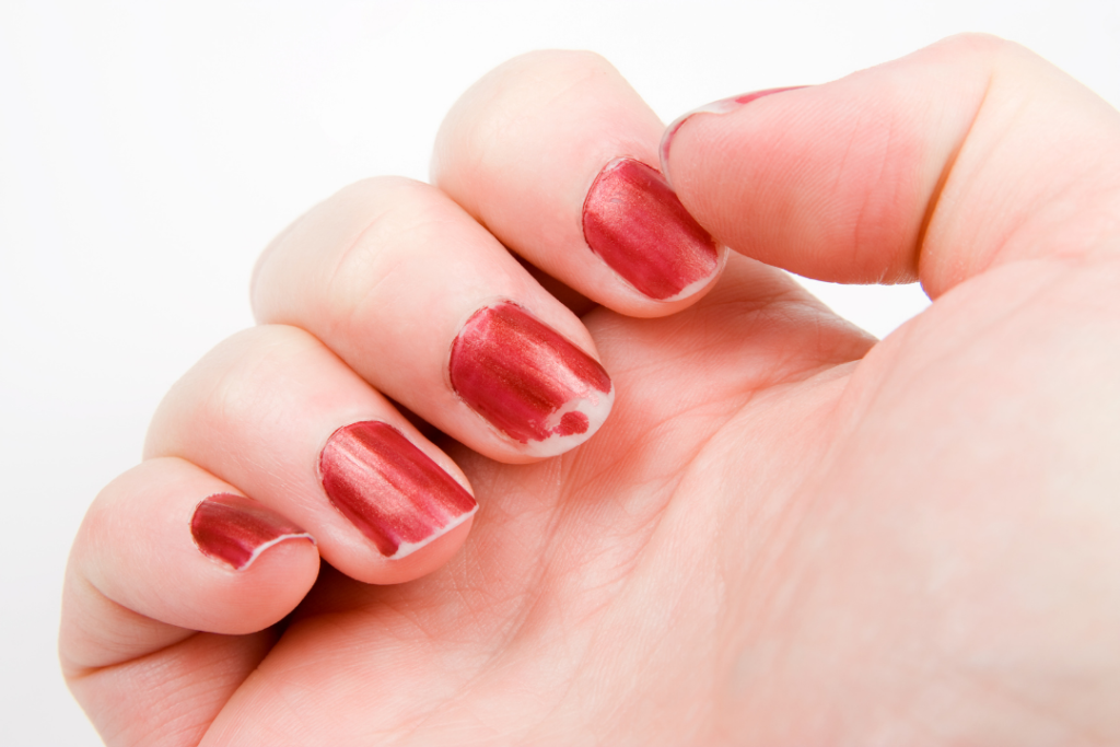 Chipped nails
