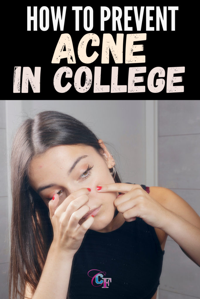 College acne tips: The ultimate guide to preventing acne in college
